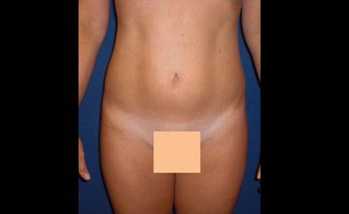 Liposuction Charlotte NC