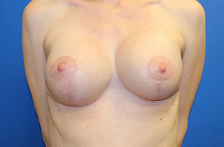 Breast Revision NC