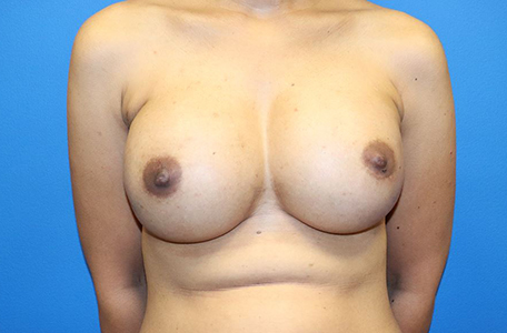 Breast Reconstruction Revision Charlotte, NC | Criswell & Criswell